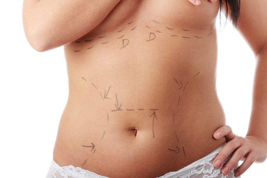 Kosmetische Chirurgie nach Gewichtsabnahme  I ©Bigstockphoto.com: ID: 13004201/ B-D-S